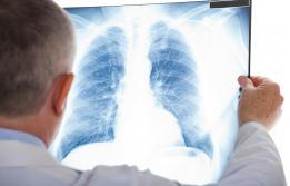 L'atrèsia pulmonar amb comunicació intraventricular a Vall d'Hebron