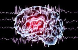 electroencefalograma Vall d'Hebron