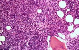 Mielofibrosi Vall d'Hebron