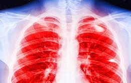 Trasplantament pulmonar a Vall d'Hebron