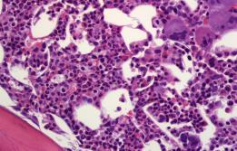 Trombocitèmia essencial a Vall d'Hebron