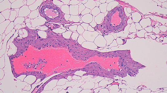 Patologia Molecular Translacional a Vall d'Hebron Institut de Recerca