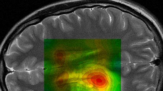 Imatge Mèdica Molecular a Vall d'Hebron Institut de Recerca