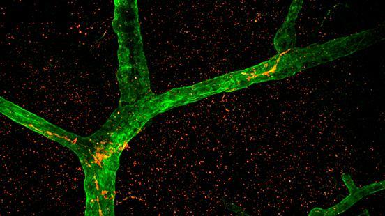 Teràpia gènica al sistema nerviós a Vall d'Hebron Institut de Recerca