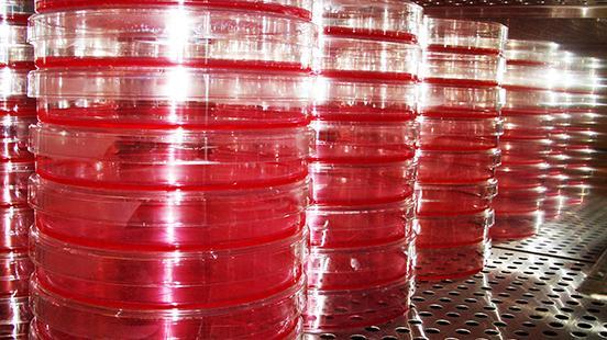 Microbiologia a Vall d'Hebron Institut de Recerca